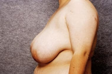 A 22-year-old patient, preoperative view. Bra size