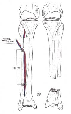 Clinical Case 2. Preoperative drawing. Schematic d