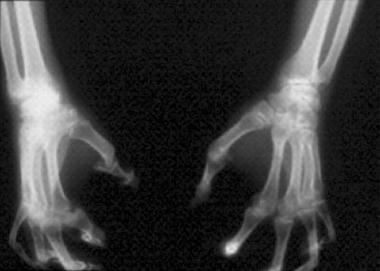 """Arthritis mutilans (ie, """"pencil-in-cup"""" deformitie"""