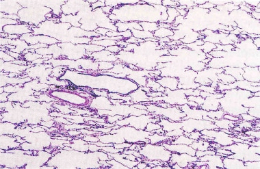 A section from a lung biopsy (hematoxylin and eosi