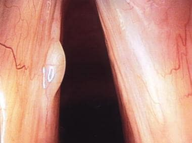 This picture shows the surgical view of a vocal fo