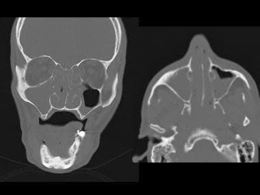 Coronal (left) and axial (right) CT scans of the s