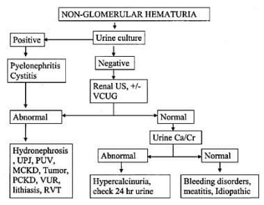 Nonglomerular hematuria.
