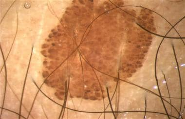 Melanocytic nevus with globular pattern.