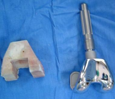 Astemmed femoral prosthesis and allograft used for