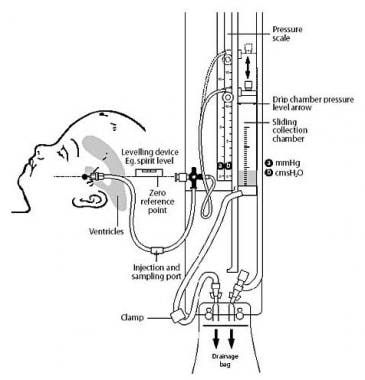 Intracranial Pressure (ICP) Monitors: Products, Design Features ...