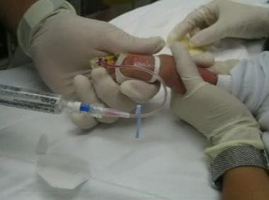 Flushing venous access device in pediatric IV cann
