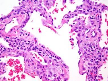 Cellular non-specific interstitial pneumonia (NSIP