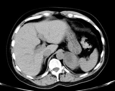 Lung cancer, small cell. Nonenhanced CT scan of th