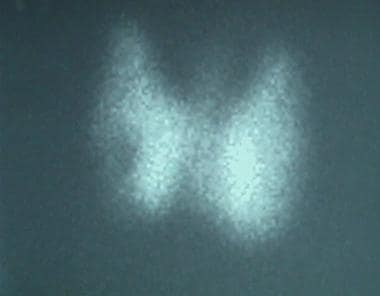 Iodine-123 thyroid scan in a patient with Graves d