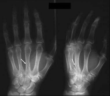 Frontal and oblique radiographs of the hand show a