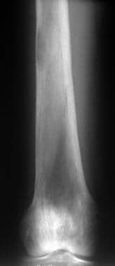 Radiograph of the distal femur in a patient with p