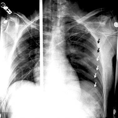 Supine anteroposterior (AP) chest radiograph that