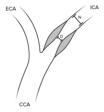 North American Symptomatic Carotid Endarterectomy