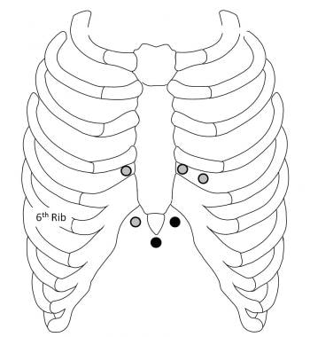 Pericardiocentesis needle insertion sites. The sub
