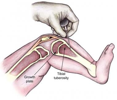 Proximal tibia intraosseous needle insertion site.