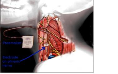 The older method of phrenic nerve stimulation for