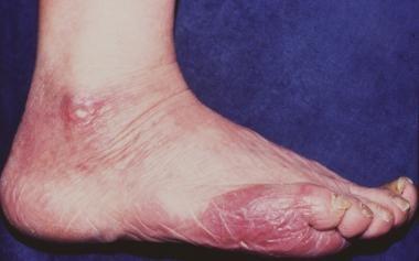 Acrodermatitis Chronica Atrophicans Photos