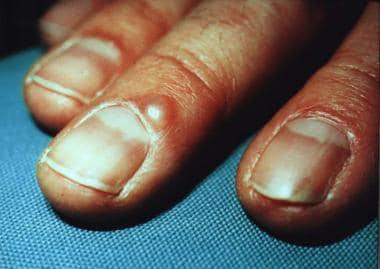 Digital mucous cyst at proximal nail fold.