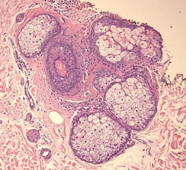 Normal sebaceous gland histology. Courtesy of Coop
