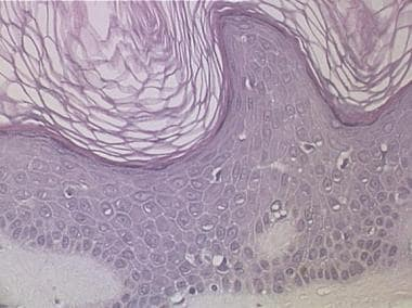 Photomicrograph of cutaneous melanoacanthoma. Larg