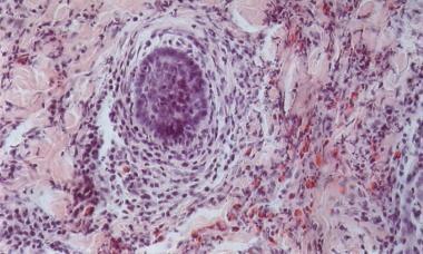 Eosinophilic Pustular Folliculitis Workup: Laboratory ...