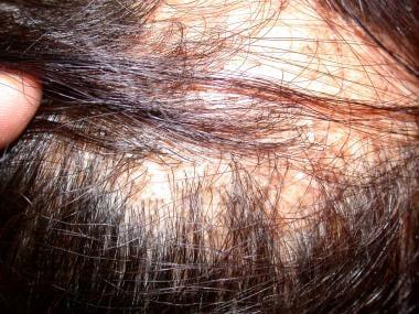 Lichen planopilaris of the scalp resulting in cica