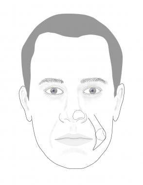 Nasal defect with planned cheek interpolation flap