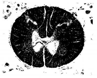 Transverse section of spinal cord at T12-L1 showin