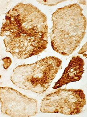 Immunohistochemical staining by using an anti-desm
