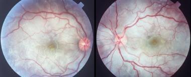 Bilateral, multifocal serous detachments in a pati