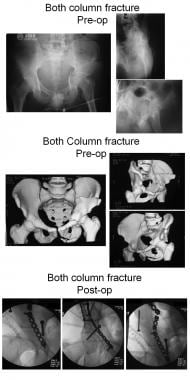 Both-column fracture.