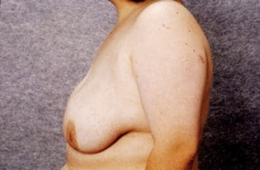 Appearance 6 weeks after breast reduction by sucti