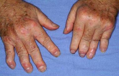 Severe psoriatic arthritis showing involvement of
