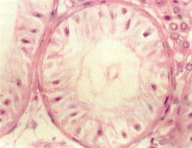 This hematoxylin and eosin section of a testis bio