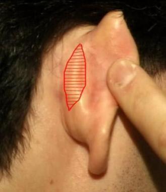 Standard postauricular skin excision for otoplasty