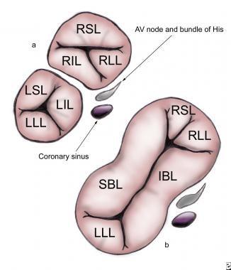 (a) An incomplete atrioventricular septal defect (