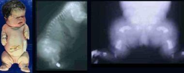 Infant with thanatophoric dysplasia. Note short-li