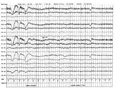 EEG in dementia.