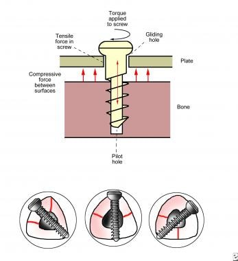 Top: Biomechanics of cannulated and noncannulated