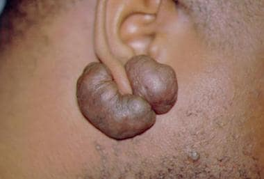 keloids: definition and historical background, epidemiology, race, Skeleton