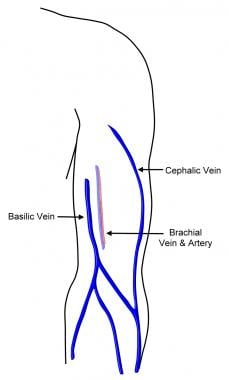 Upper extremity venous anatomy.