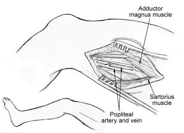 The distal superficial femoral artery and above-kn