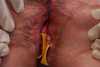 recurrent abscess