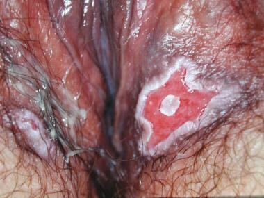 Benign vulvar lesions. Pemphigus vulgaris, vulvar