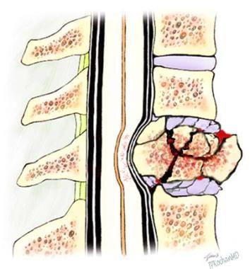A vertebral burst fracture.