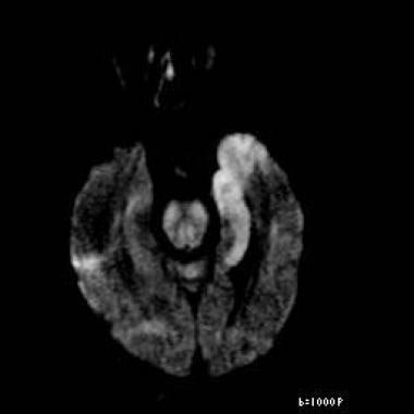 Axial diffusion-weighted image reveals restricted
