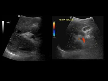 Ultrasound reveals an echogenic partially recanali