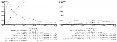Renal artery stenosis/renovascular hypertension. T