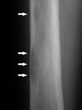 Radiograph of the femur in primary hyperparathyroi